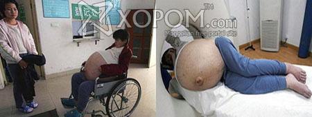 Чен Хуанксианг нэртэй 40 настай хятад эмэгтэй 50 кг хавдараа авхуулжээ [7 фото + текст]