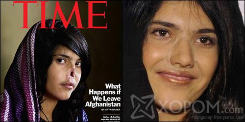 Зэрэмдэглүүлсэн афган бүсгүй Aisha шинэ хамартай боллоо [7 фото]